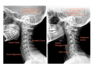 15-yrs-post-whiplash, Dr. Keefe, Natural Health care, pain, Tulsa chiropractor, neck pain, headache,