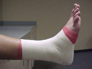 Athletic Tape ankle, Dr Keefe,  Natural Health care, pain, Tulsa chiropractor,