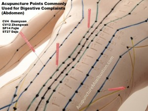 acupuncture, Dr Keefe,  Natural Health care, pain, Tulsa chiropractor,