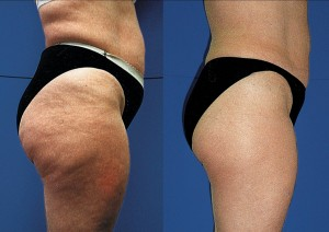 cellulite-solution, Dr Keefe,  Natural Health care, pain, Tulsa chiropractor,