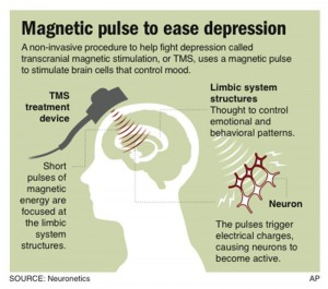 magnetic_pulse_to_be_used_for_depression_8331670164