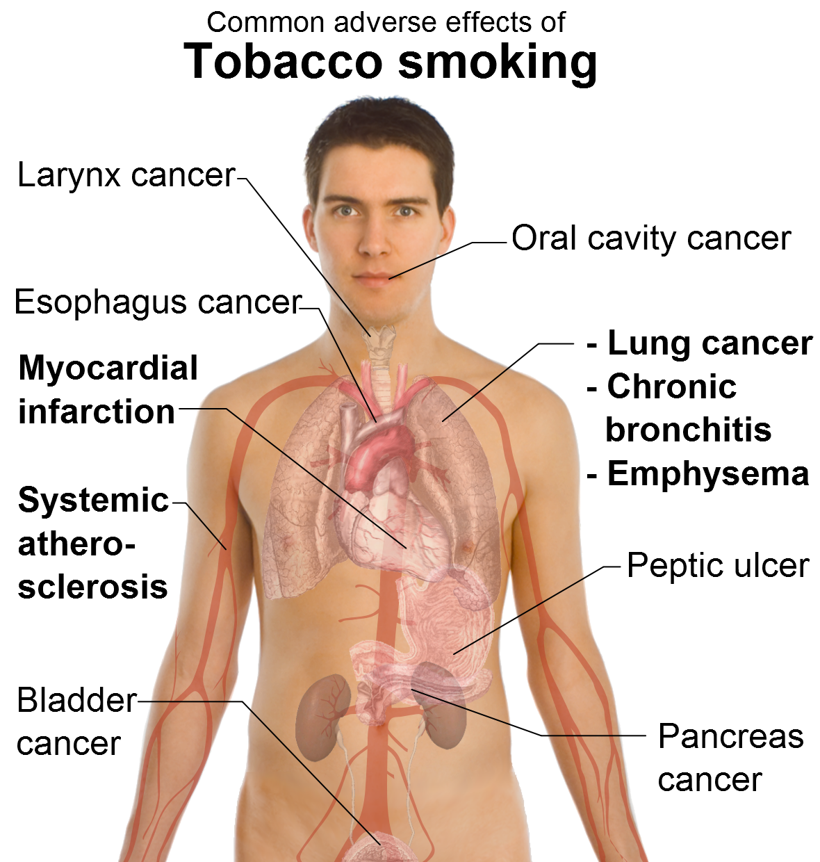 a description of the different harmful effects that your body can get from smoking When you smoke, these various chemicals get into the bloodstream, are carried to all parts of the body and go right to the most susceptible cells tars found in cigarette tobacco are harmful because they can build up in the lungs, inflaming the linings of blood vessels and other soft tissues.