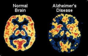 alzheimers-largeDr. Keefe, Keefe Clinic. Tulsa Chiropractor, pain, natural health care.